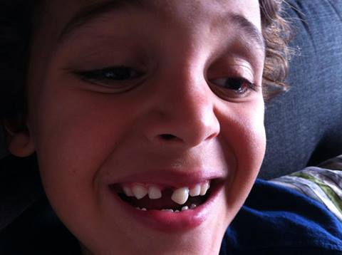 Best Ways To Remove A Loose Tooth