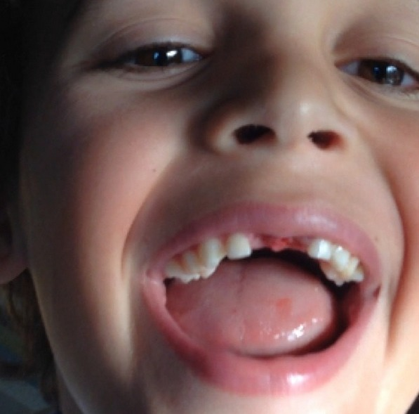 Pulling Out A Loose Tooth Is Like Pulling Teeth - DadCAMP