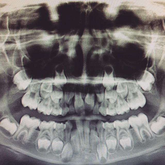 Zacharie's mouth. Lots of teeth, not a lot of room. #teeth #dentist #braces #orthodontist #zacharie #expensive