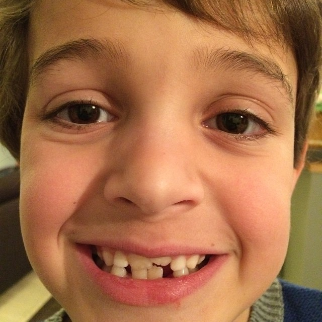 Christmas Day Tooth Fairy alert. #zacharie #6thtooth #toothfairy #alliwantforchristmad