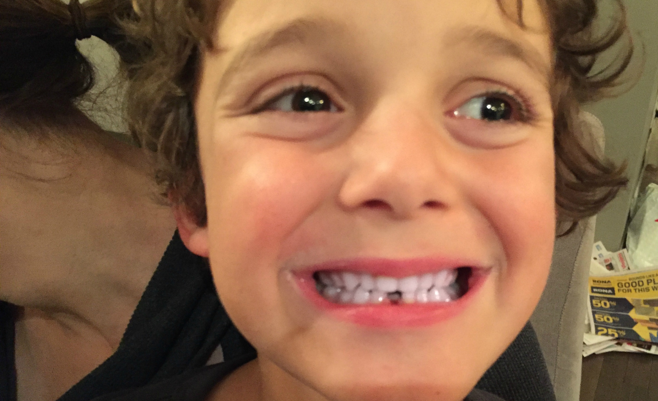 charlie lost his tooth